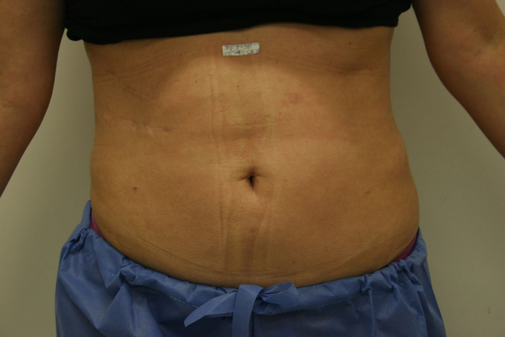 Laser Assisted Lipolysis For Lipomas And Localized Fat